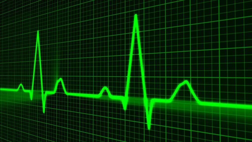 Monitor de batimentos cardíacos  foi substituída pelo celular